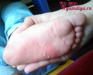 ожог на ноге у ребенка